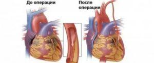 Можно ли летать самолетом после инфаркта и стентирования